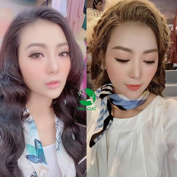 Cùng nữ diễn viên Thanh Hương sở hữu ngoại hình hoàn hảo với những ưu đãi hấp dẫn từ Thu Cúc