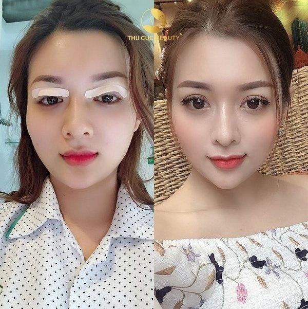 Đôi mắt 2 mí đẹp hoàn hảo, tự nhiên hết ý với công nghệ cắt mí chuẩn Mỹ độc quyền tại Thu Cúc Sài Gòn