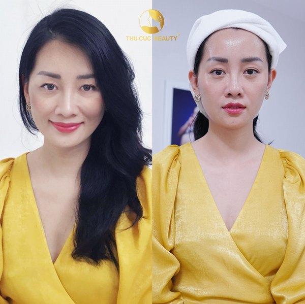 MC Minh Hà tự tin với làn da không tuổi sau khi thực hiện dịch vụ cấy collagen tươi tại Thu Cúc