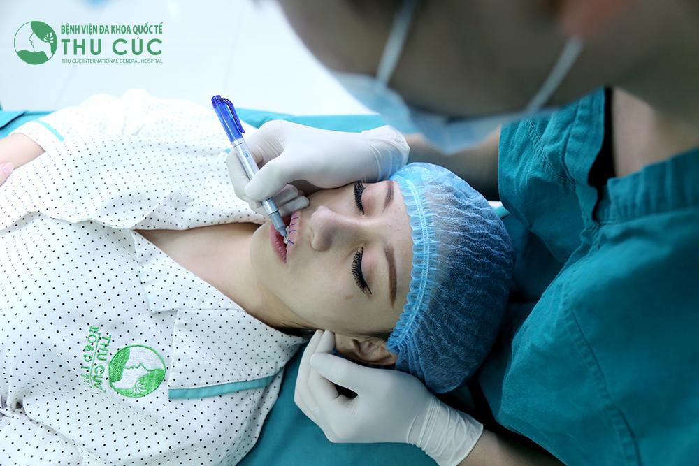 Bác sĩ đo vẽ thẩm mỹ vùng phẫu thuật