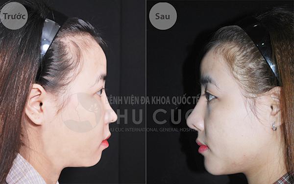 Chiếc mũi sau phẫu thuật không chỉ thanh thoát mà còn hài hòa với gương mặt