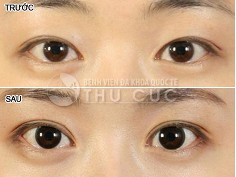 Sau phẫu thuật, góc mắt được mở rộng trở nên to, long lanh và tràn đầy sức sống