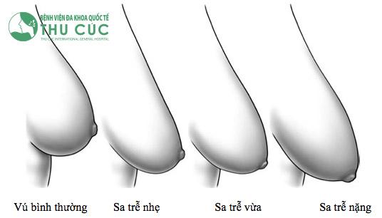 Phẫu thuật sẽ được tiến hành dựa trên mức độ sa trễ của ngực