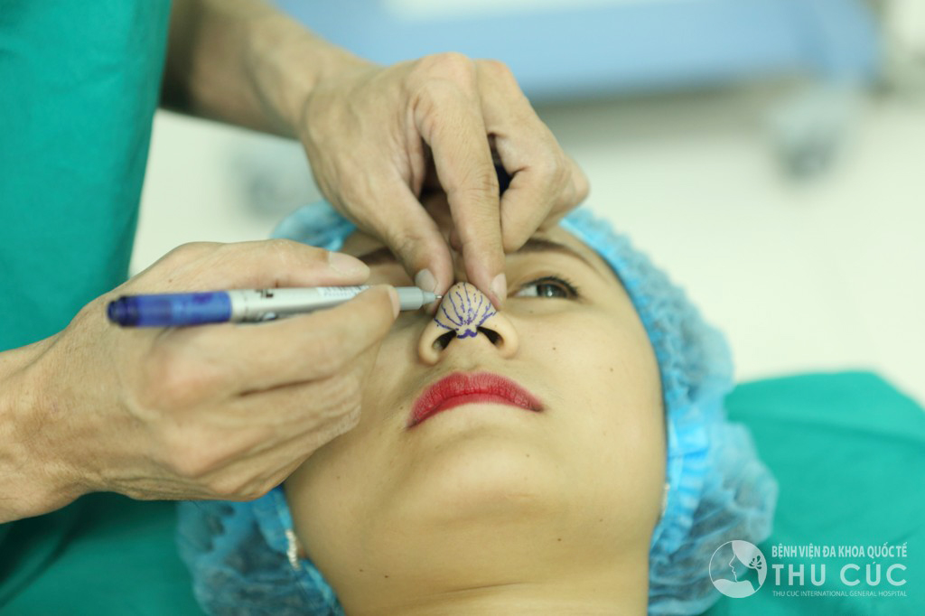Bác sĩ đo vẽ định hình vị trí thực hiện thu gọn đầu mũi