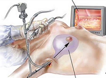 Nâng ngực nội soi đường nách là phương pháp sử dụng túi độn nhân tạo đặt vào khoang ngực thông qua đường nách dưới sự hỗ trợ của thiết bị camera ngầm