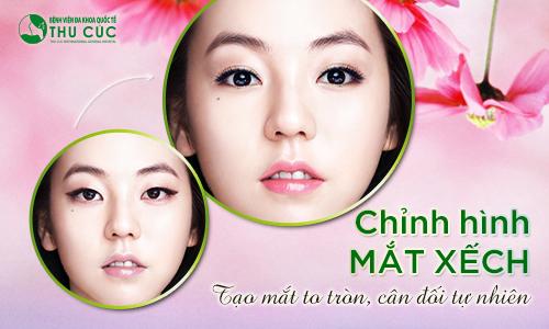 chi-phi-chinh-hinh-mat-xech3