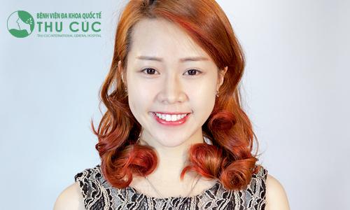Thu Trang tự tin nhờ dáng cằm V line sang chảnh