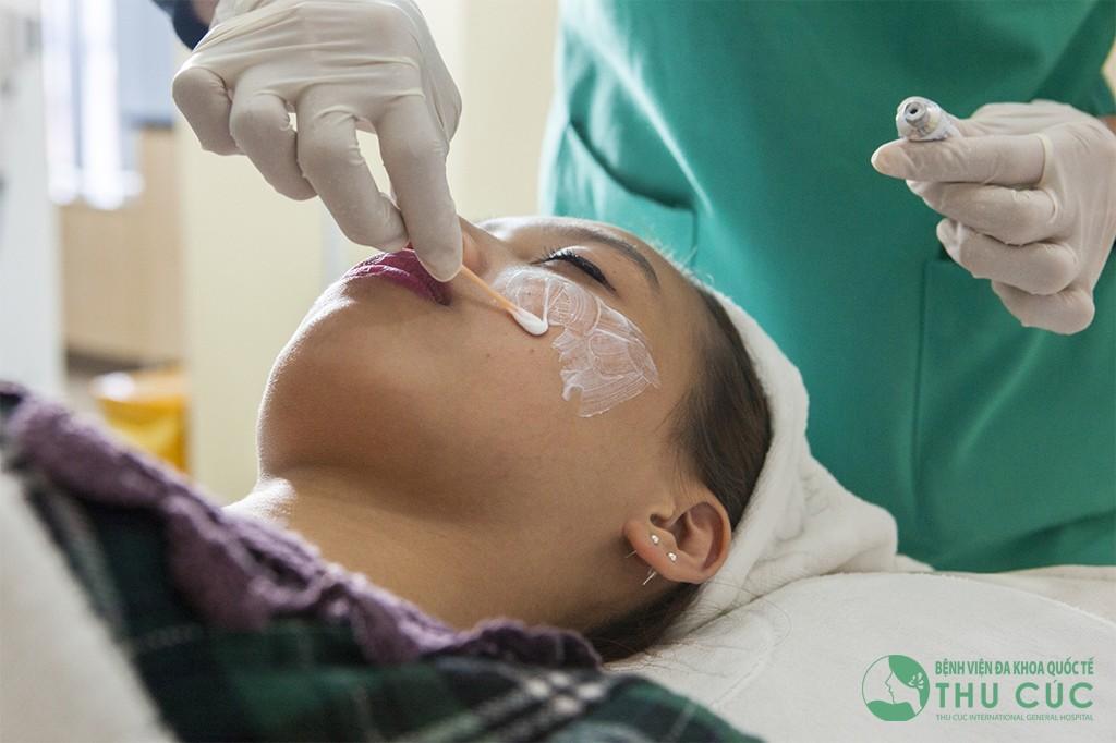 Bác sĩ thoa thuốc tê trước khi điều trị cho khách hàng