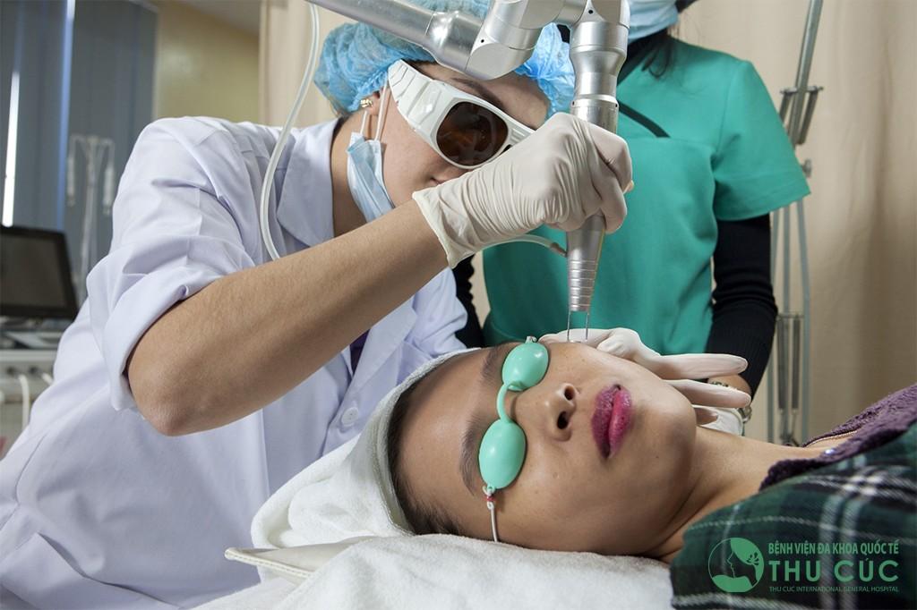 Bác sĩ chiếu tia laser có bước sóng phù hợp vào vùng da cần điều trị để tiêu diệt các hắc sắc tố sậm màu