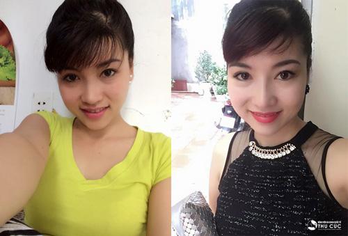 Bà mẹ U30 Ninh Thảo đẹp trẻ trung nhờ nâng mũi S-line