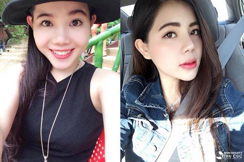 Nữ Việt kiều Mỹ – Quỳnh Đăng chọn thẩm mỹ mũi tại Việt Nam