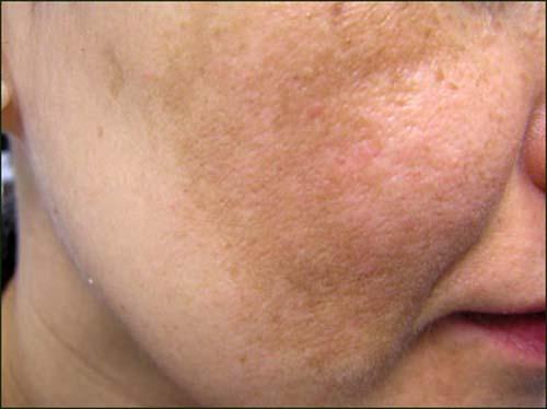Nám da thường xuất hiện thành những mảng lớn