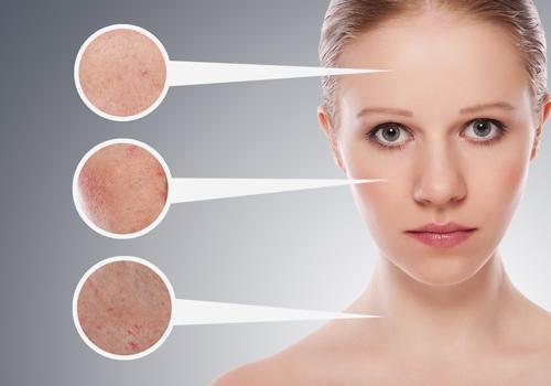 5 công thức trị sẹo rỗ hiệu quả dành cho da mụn