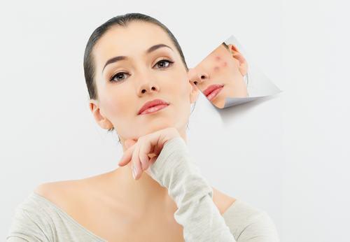 Những điều cần biết về sẹo để chữa trị cho đúng