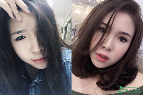 Sau cắt mí, Trần Hồng Anh (20 tuổi) cuốn hút hơn trước. (Lưu ý: Kết quả có thể khác nhau tùy cơ địa từng người)