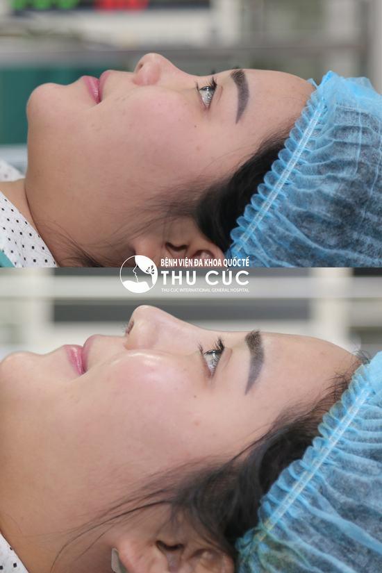 Cận cảnh sự khác biệt trước và ngay sau khi nâng mũi của cô bạn tại Bệnh viện Thu Cúc (Lưu ý: Kết quả có thể khác nhau tùy cơ địa từng người)