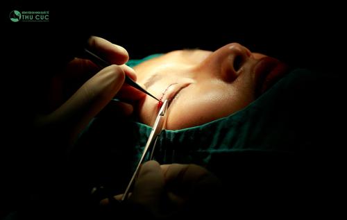 Bắt đầu phẫu thuật: Bác sĩ tiến hành cắt bỏ phần da thừa, mỡ thừa mí mắt sau đó khâu lại bằng chỉ thẩm mỹ, bước này đòi hỏi bác sĩ phải có chuyên môn giỏi, xử lý khéo léo giúp hạn chế xâm lấn tối đa và không để lại sẹo.