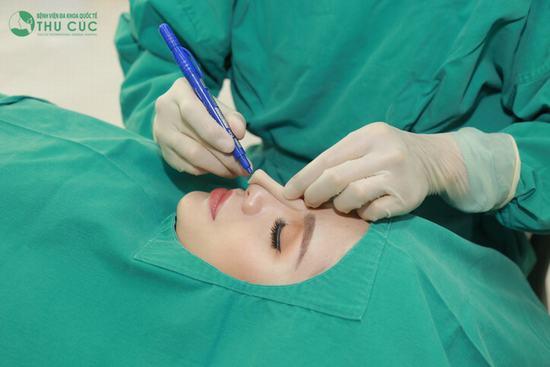 Tại Bệnh viện Thu Cúc, khi thực hiện nâng mũi Liftderm S 5D, các bác sĩ sẽ đo đạc phân tích cụ thể tỉ lệ khuôn mặt để đưa ra các thông số về kích thước cho dáng mũi hoàn hảo mọi góc độ