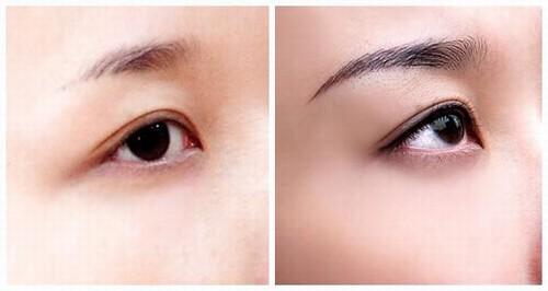 Sau phun xăm mí mắt bạn sẽ nhanh chóng có đôi mắt đẹp cùng ánh nhìn sắc nét đầy quyến rũ.