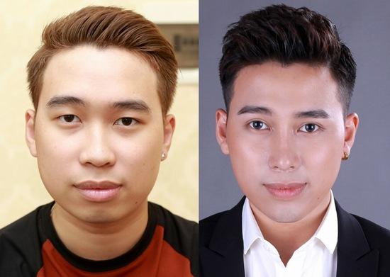 Top 3 Vietnam Idol tiết lộ tổng chi phí gói phẫu thuật thẩm mỹ